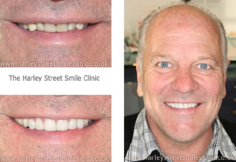 Veneers for Andy Gray - Celebrity Smiles
