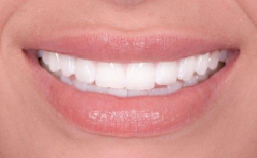 Mini Smile Makeover after