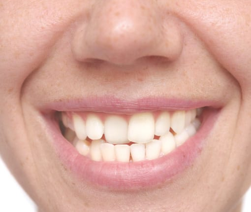 crooked teeth treatment with Veneers - Harley Street Smile Clinic