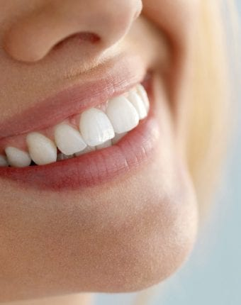 Full Smile Makeover - Cosmetic Dentistry London - The Harley Street Smile Clinic