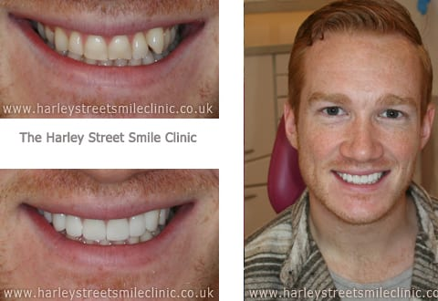 Veneers for Greg Rutherford - Celebrity Smiles
