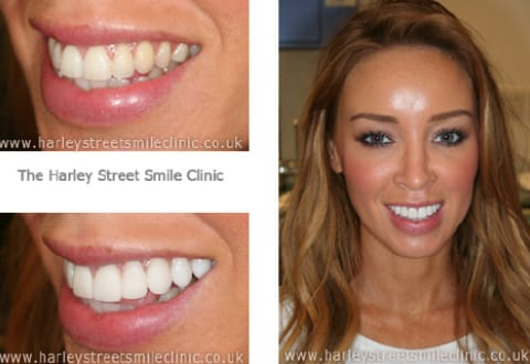 Veneers for Lauren Pope - Celebrity Smiles