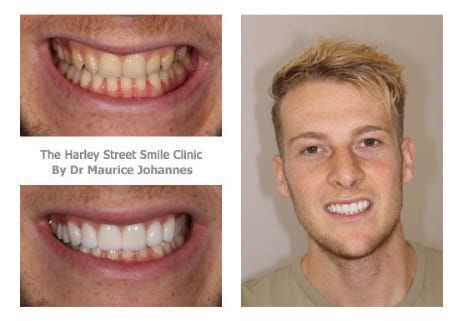Alex Williams cosmetic dentist london testimonial