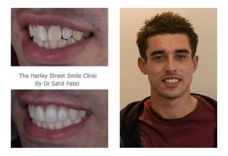 Billy Collett cosmetic dentist londontestimonial