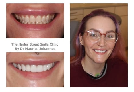 Danielle Shaw cosmetic dentist london testimonial