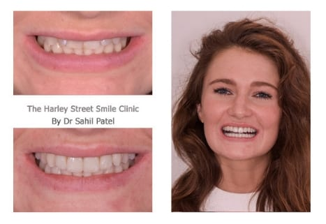 Emily Atkinson cosmetic dentist london testimonial
