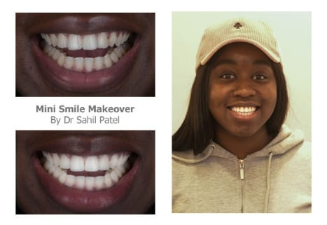 Georgina Afuape cosmetic dentist london testimonial