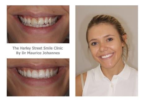 Georgina Taylor cosmetic dentist london testimonial