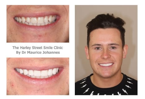 Veneers in London James Noble testimonial