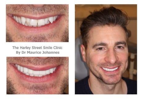 James West cosmetic dentist london testimonial