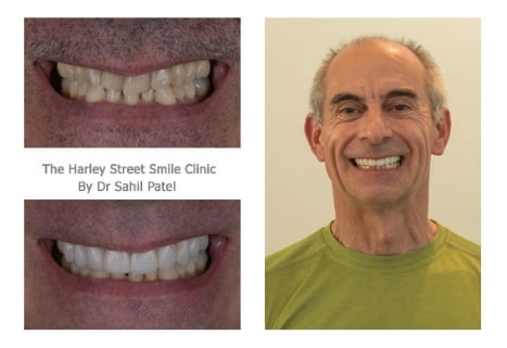 Jon Cowell cosmetic dentist london testimonial
