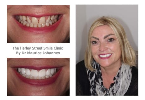 Julie Salmond cosmetic dentist london testimonial