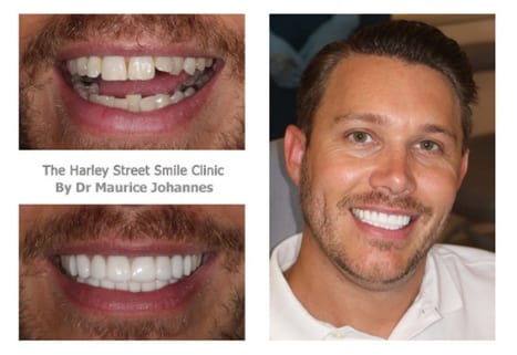 Robert Head cosmetic dentist london testimonial