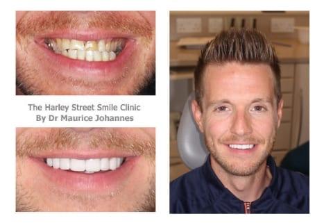 Ryan Murphy cosmetic dentist london testimonial