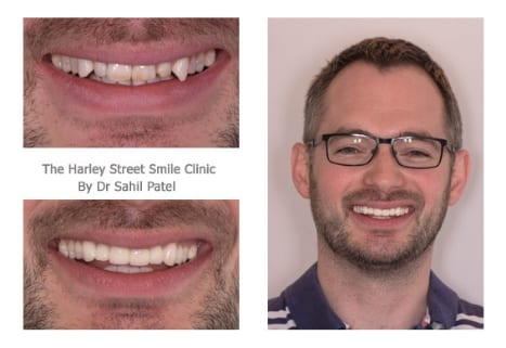 Ryan Rose cosmetic dentist london testimonial