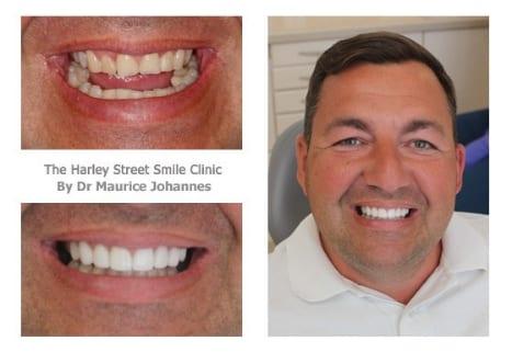 Scott Peters cosmetic dentist london testimonial