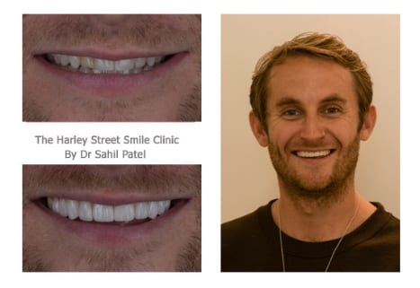 Tom Newman cosmetic dentist london testimonial