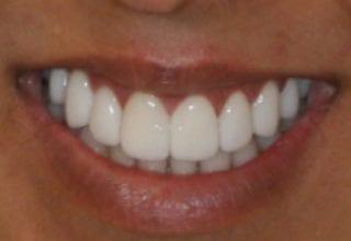 gummy smile after 7