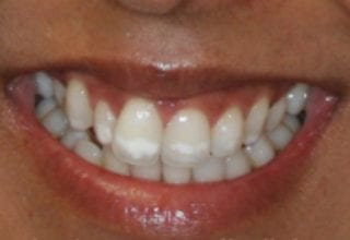 gummy smile before 7