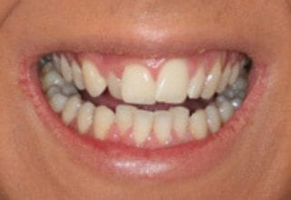 narrow smile before 2