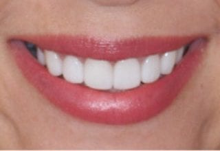 overlapping teeth after 1