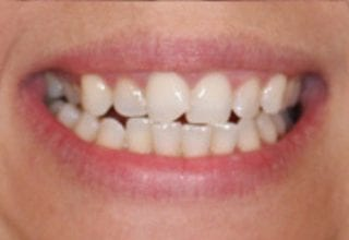overlapping teeth before 1
