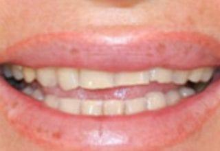 Veneers in London   Harley Street Smile Clinic