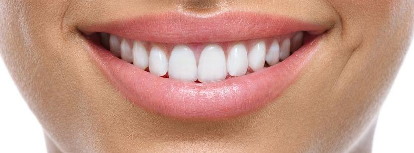 Celebrity Veneers Whitening Cases - London Cosmetic Dentistry