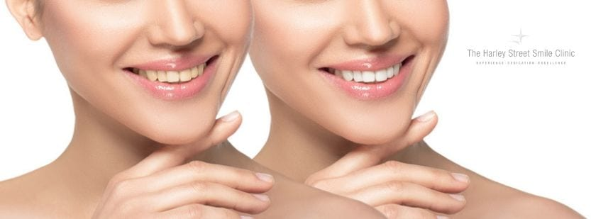 Veneers vs Implants – The Correct Treatment for You - Cosmetic Dentists London