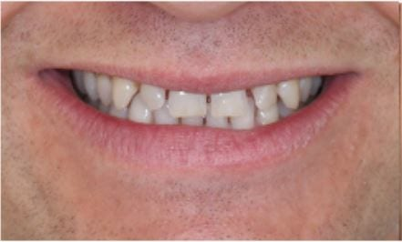 Veneers for Gaps In Teeth - Harley Street Smile Clinic