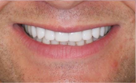 How Do Porcelain Veneers Close the Gaps in My Teeth