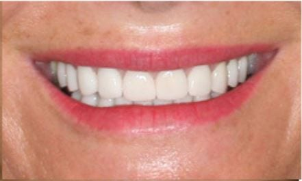 Veneers and Crowns Restore Worn Teeth
