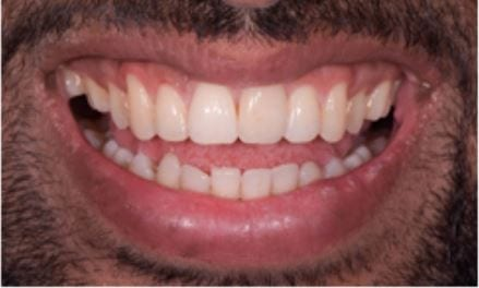 Dental Contouring & Tooth Reshaping London - Harley Street