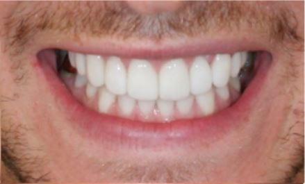 Veneers for Crooked Teeth | Harley Street Smile Clinic