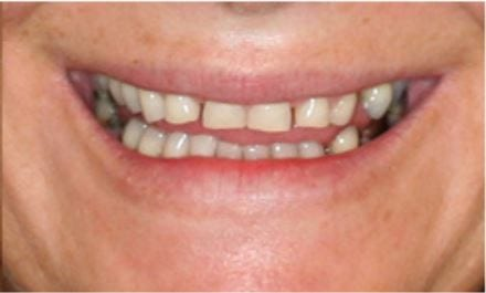 Veneers for Worn Chipped Teeth