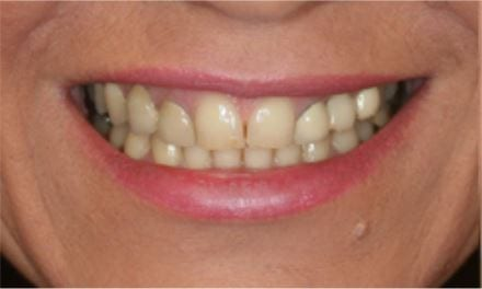 Full Set of Veneers