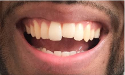 tooth reshaping and dental contouring london