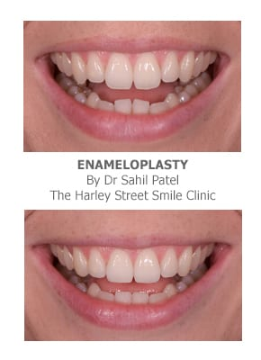 Veneers for Tooth Reshaping