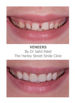 Porcelain Veneers a solution for worn teeth