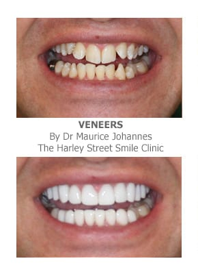 porcelain veneers for crooked teeth before and after