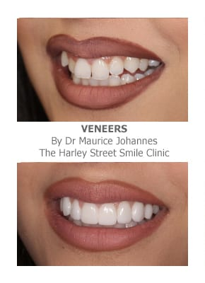 Fixing Crooked Teeth With Veneers