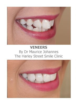 Do Veneers Work on crooked teeth