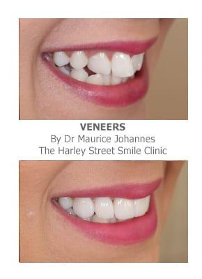 Do Veneers Work on crooked teeth