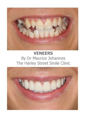 Fixing Crooked Teeth With Veneers