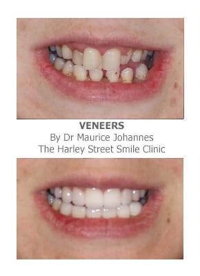 Get Straight Teeth Using Porcelain Veneers