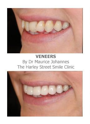 Get Straight Teeth Using Porcelain Veneers