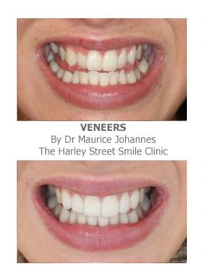 Veneers for Crooked Teeth