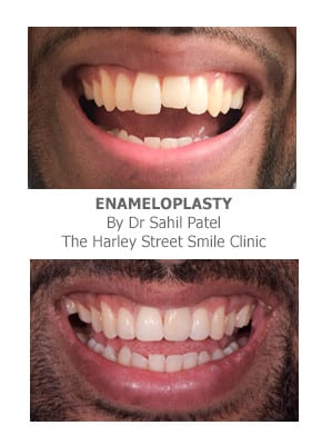 Tooth Reshaping and Dental Contouring