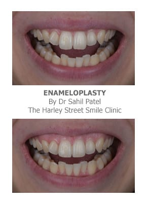 Veneers for Teeth Reshaping & Gap Closing