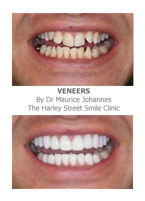 Veneers for Fluorosis Dental Treatment